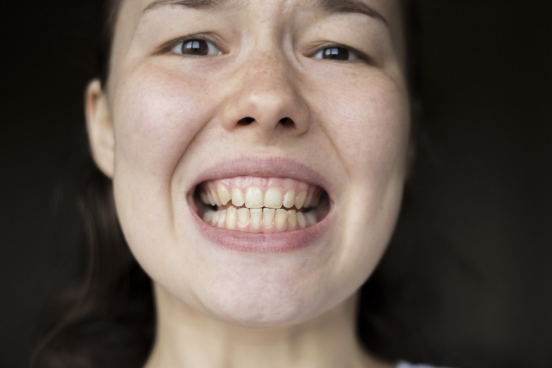 Cheap Teeth Whitening