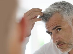 Unbelievable Hair Loss Success Stories