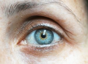 Recovery Tips for Cataract Surgery