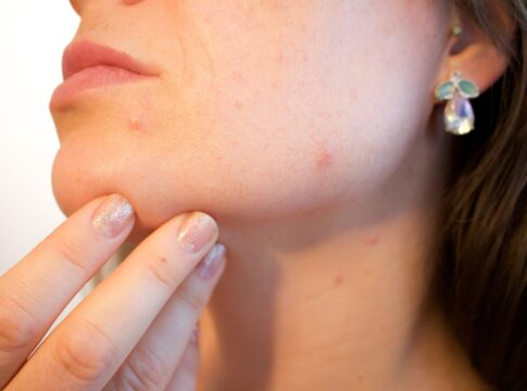 How To Pop Pimples